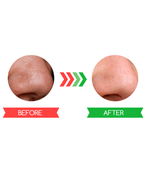 before-after-blackhead-remover