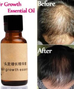 hair growth essence, Organic Hair Growth Essence
