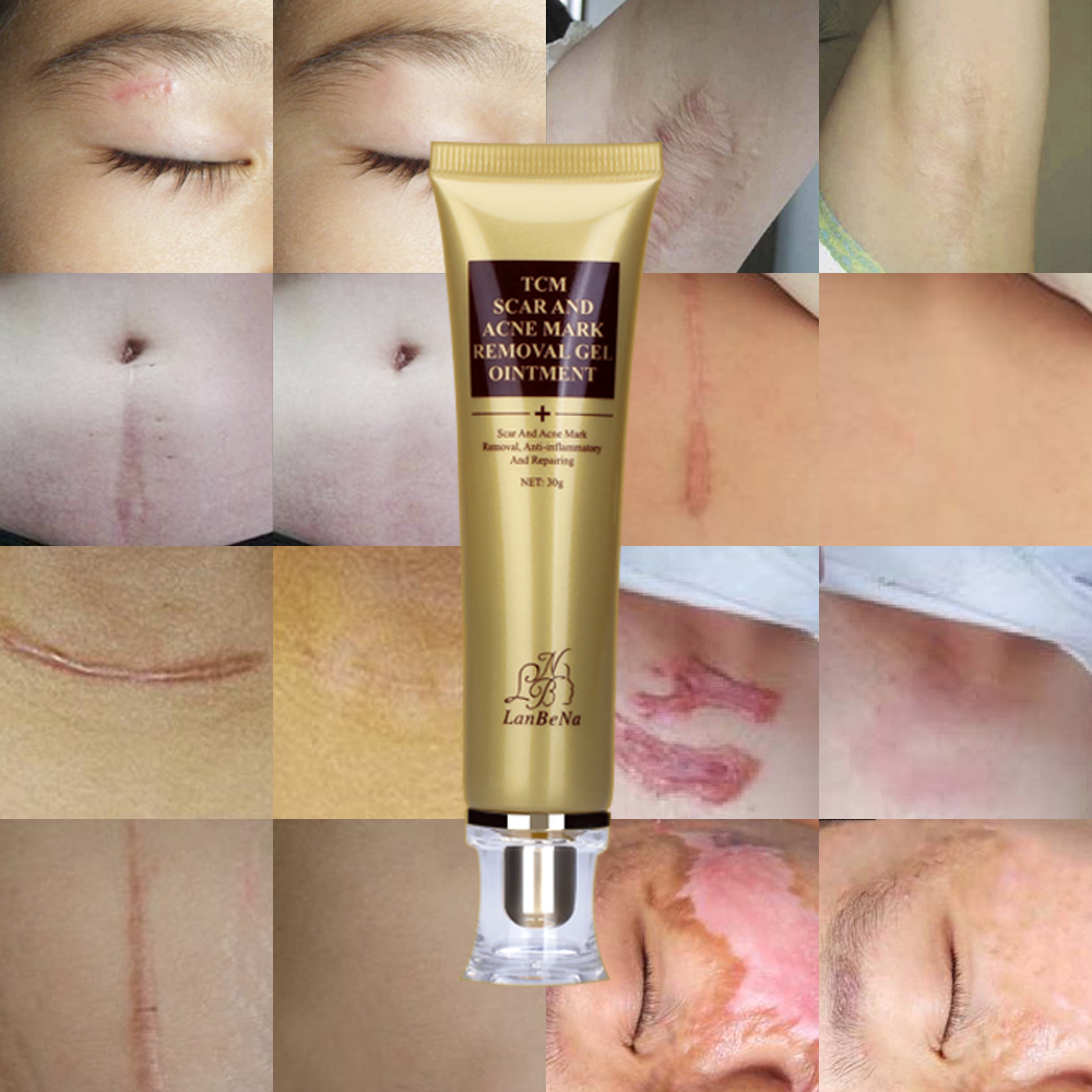 Best Scar Removal Cream For Acne Scar Treatment And Stretch Mark