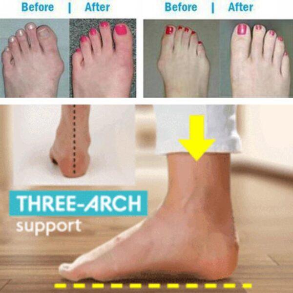 Women PU Leather Shoes Comfy Platform Flat Sole Ladies Casual Soft Big Toe Foot Correction Sandal 2