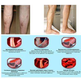 Varicose Veins Herbal Healing Patch, Varicose Veins Herbal Healing Patch