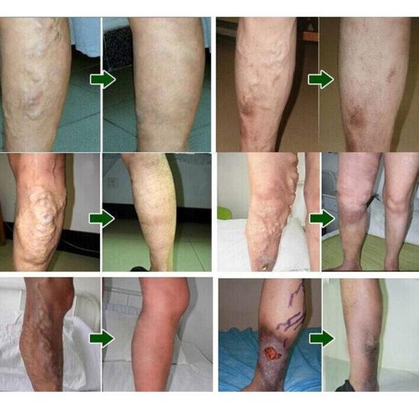 18pcs Varicose Veins Cure Patch Vasculitis Natural Solution Chinese Herbal Treatment Mai Guan Yan Acid Bilges 4