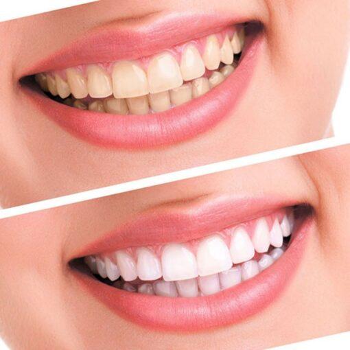 Tooth Whitener Dental Equipment, Tooth Whitener Dental Equipment