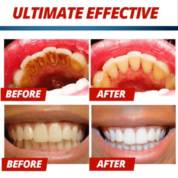 Intensive Stain Removal Whitening Toothpaste Fight Bleeding Gums Toothpaste Passion Fruit Blueberry 4 1