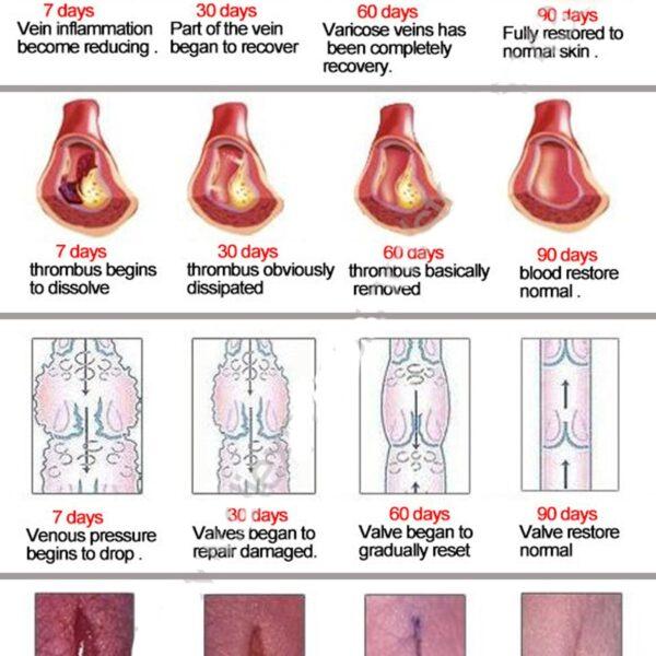 Varicose Veins Treatment Cream Ointment Vasculitis Phlebitis Spider Veins Pain Varicosity Angiitis Remedy Removal Herbal Cream 5