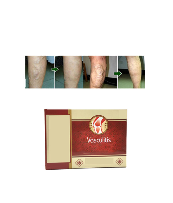 18pcs Varicose Veins Cure Patch Vasculitis Natural Solution Chinese Herbal Treatment Mai Guan Yan Acid Bilges 5 1 1