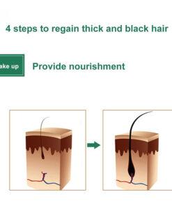 Hair Regrowth Serum, 7Days Hair Regrowth Serum