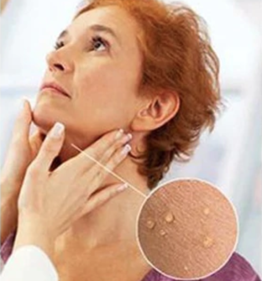 skin tag remover, Skin Tag Remover
