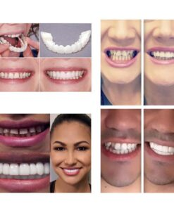 Perfect Smile Snap On Braces, Perfect Smile Snap On Braces