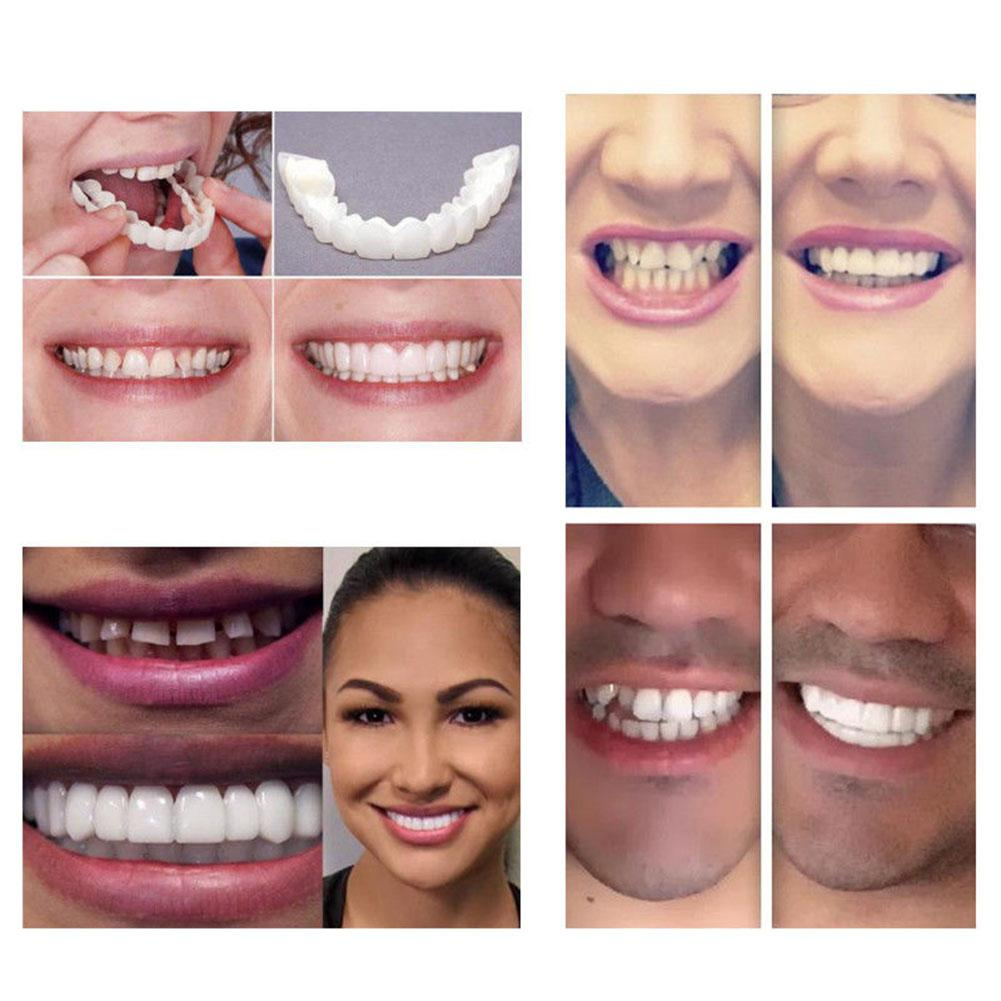 Perfect Smile Snap On Braces - Not sold in stores
