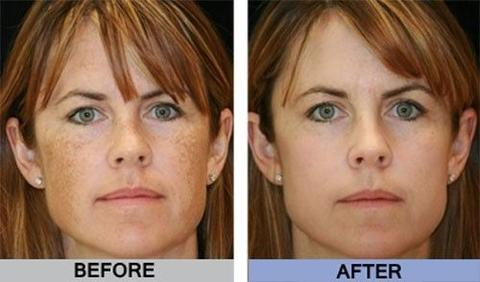 Skin Brightening Cream, Skin Brightening Cream
