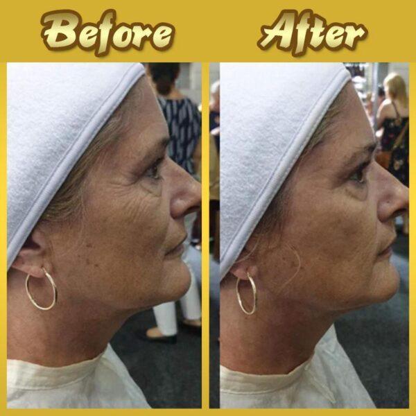 24K Gold Face Mask 10 f01d6058 70d6 4a76 82cb