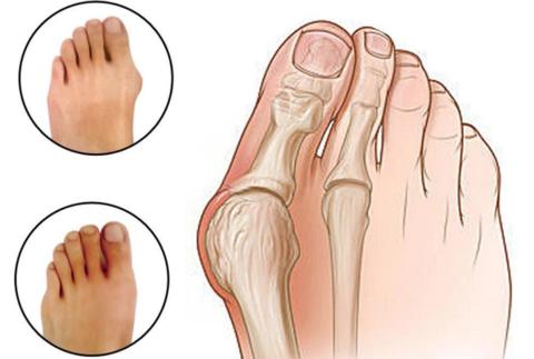 Bunion Relief Toe Socks, Bunion Relief Toe Socks