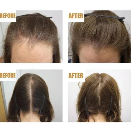 Hair ReGrowth -seerumi, Hair ReGrowth -seerumi