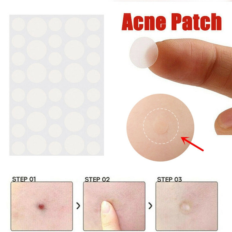 36pcs Skin Tag Remover Patch Not Sold In Stores