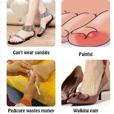 Glue Free Toenail Patch, Glue Free Toenail Patch