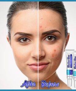 Crema viso anti-imperfezioni, crema viso anti-imperfezioni
