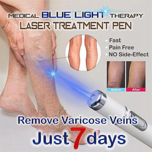 Blue Light Therapy, Blue Light Therapy, Varicose Penes