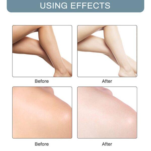 ٹانگوں گھٹنوں کے نجی حصے کے درمیان جسمانی کریم بغلوں میں سفیدی والی کریم