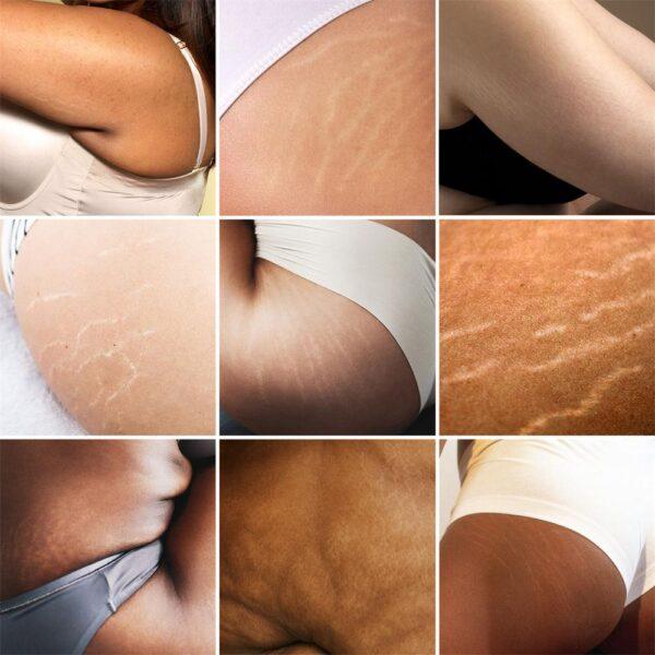 Crema para el cuidado de la piel Ifory Tailandia Pasjel, parche de reparación de eliminación de cuerpo precioso, eliminación de cicatrices, obesidad posparto, embarazo 1