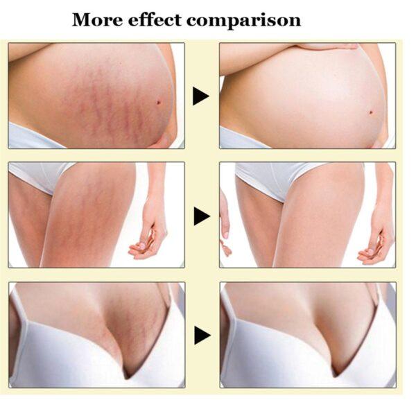 Crema para el cuidado de la piel Ifory Tailandia Pasjel, parche de reparación de eliminación de cuerpo precioso, eliminación de cicatrices, obesidad posparto, embarazo 2